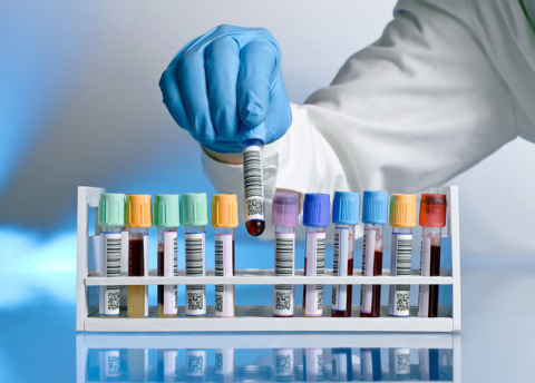 При желании можно сдать кровь на все известные виды тромбофилий