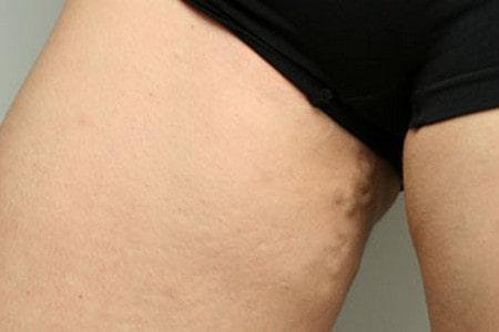 Распространенный варикоз вен бедра, переходящий на промежность и органы малого таза