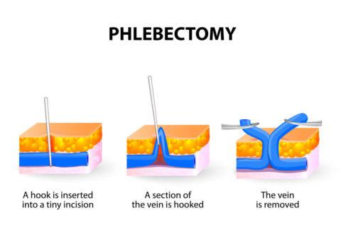 Схема проведения флебэктомии