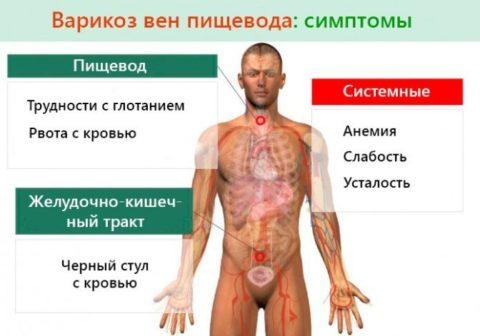 Симптомы варикоза пищевода