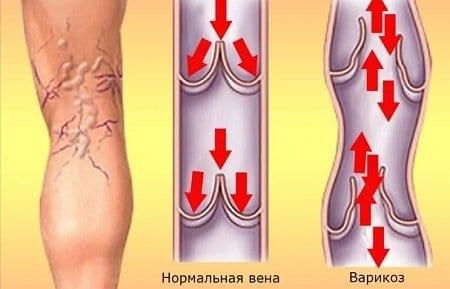 Слабость венозной стенки – одна из основных причин варикоза