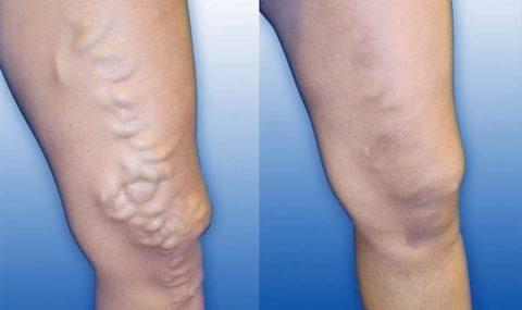 Состояние вен у пациента с варикозом до и после проведенного лечения