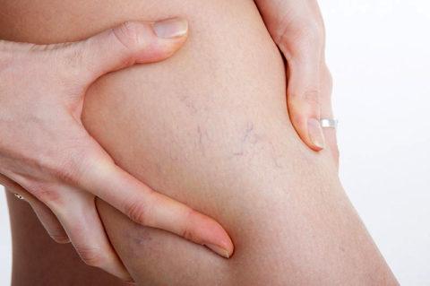 Сосудистые «звездочки» на ногах – один из симптомов варикоза