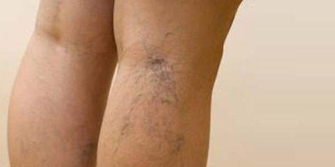 Сосудистые звездочки на ногах при варикозе