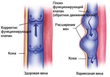 Сравнение нормальной и больной вены
