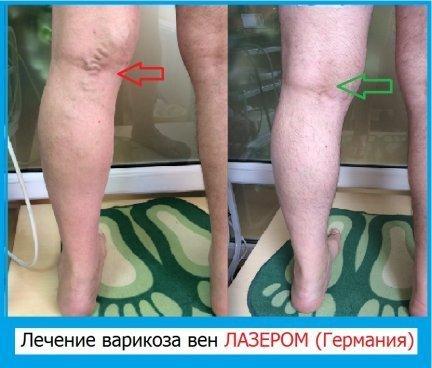 Тромбэктомия катетером Фогерти