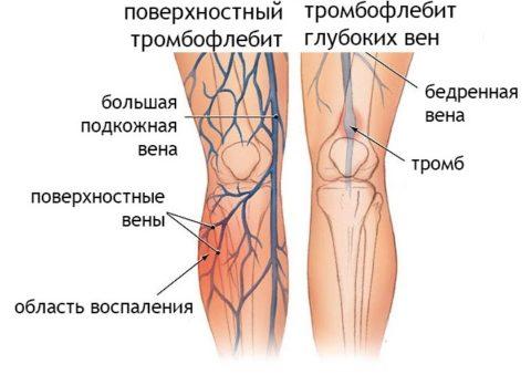 Тромбофлебит может поражать как поверхностные, так и глубокие вены.