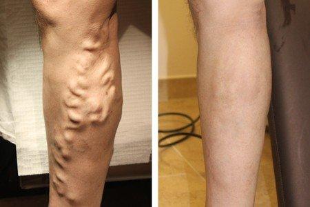 Тромболизис – щадящий вид хирургического лечения