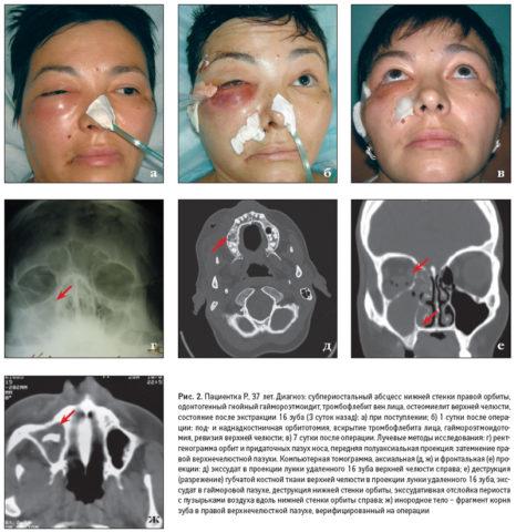У больной на фото после удаления зуба развился гайморит и этмоидит, который сопровождается тромбофлебитом вен лица и поднадкостничным абсцессом нижней стенки глазницы.