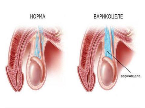 Варикоцеле (фото) – часто диагностируемая патология у мужчин любого возраста