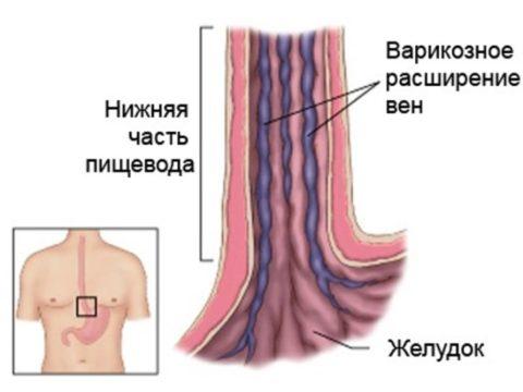 Варикоз вен пищевода часто осложняется кровотечением