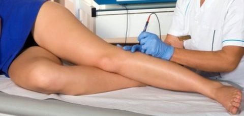 Варикозное заболевание вен выявляется при профилактическом обследовании
