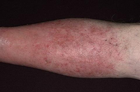 Внешние проявления варикозного дерматита