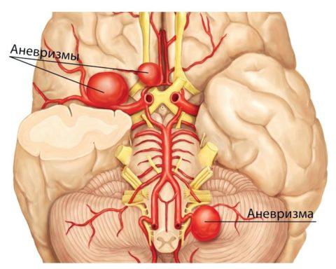Аневризма означает образование «мешка» в стенке артерии