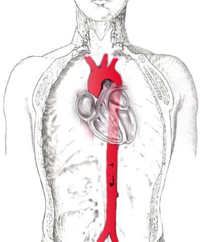 Аорта – главный артериальный сосуд в организме человека