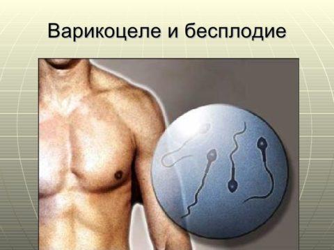 Бесплодие при варикоцеле