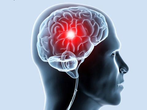 Патология часто становится причиной ишемии нервной ткани