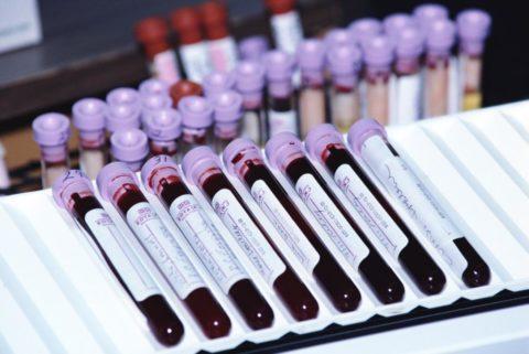 Если анализы не соответствуют нормам, лечение придется отложить