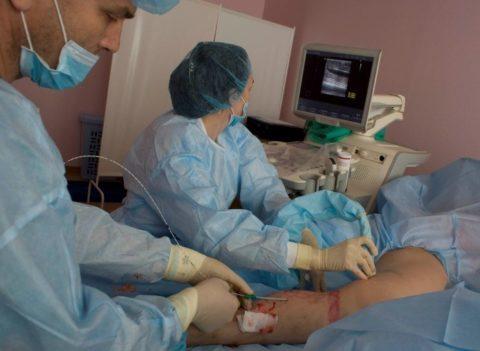 Фото аппаратного лечения варикоза
