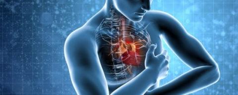 Фото. Приступ стенокардии и инфаркт миокарда близки по причинам