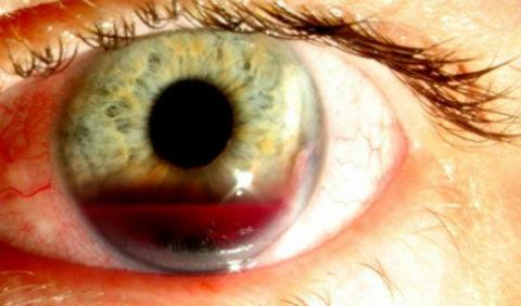 Гифема – скопление крови в передней камере глаза