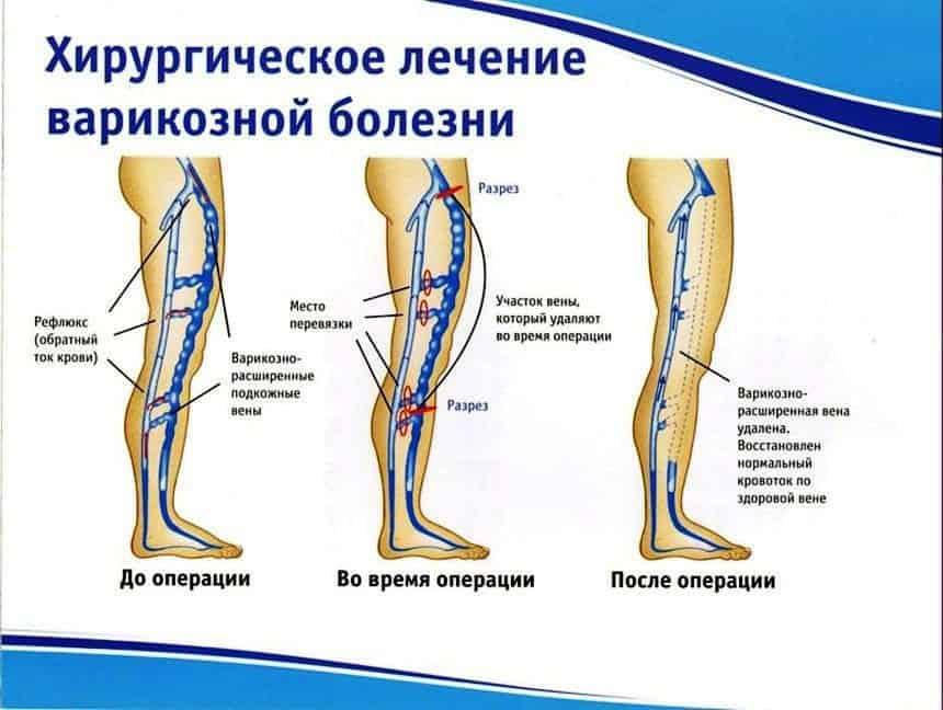 Хирургическое лечение варикозного расширения вен нижних конечностей