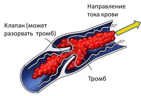 Инструкция образования тромба