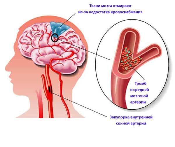 Инсульт – грозное осложнение заболевания