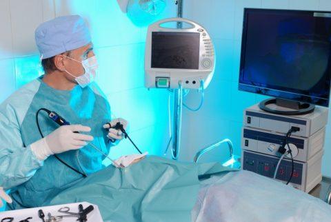 Использование эндоскопического метода лечения варикоцеле