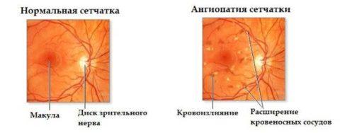 Как меняется глаз при развитии заболевания
