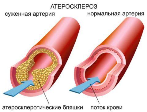 Как выглядит здоровая и пораженная артерия
