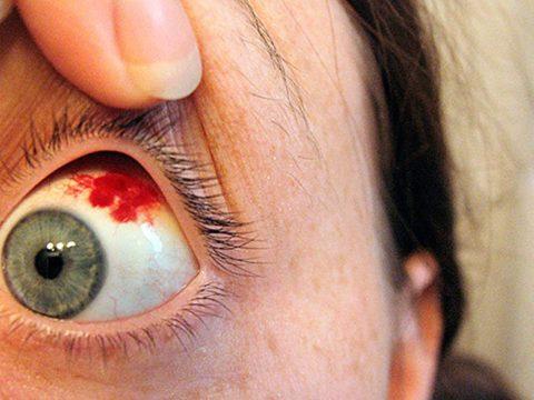 Кровь разливается по глазу ярким пятном