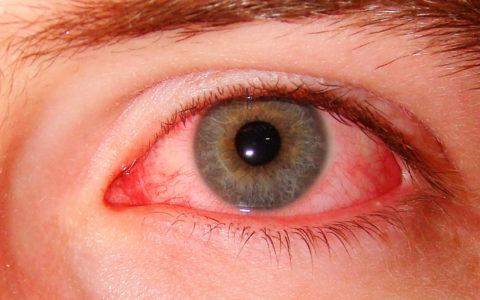Красные глаза – признак их переутомления