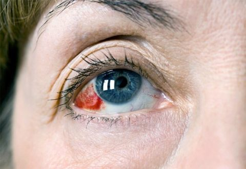 Кровоизлияние, как на фото, обычно проходит самостоятельно