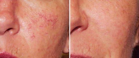 Лечение купероза на лице – до и после