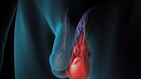 Левосторонне варикоцеле - самое распространенное заболевание яичек