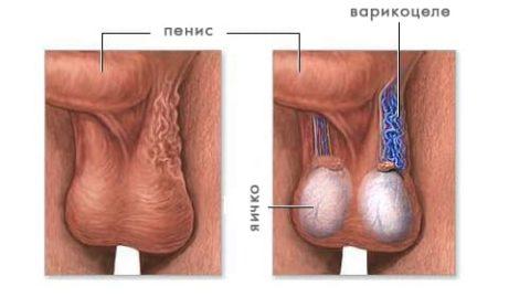 Здоровые и расширенные вены