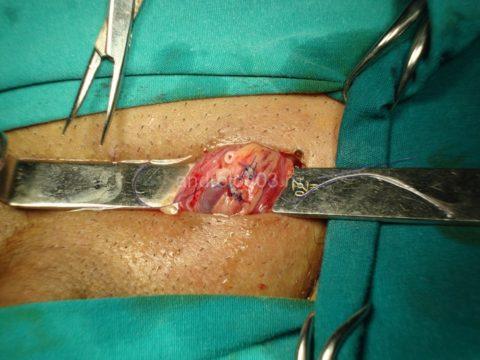 Микрохирургическая техника
