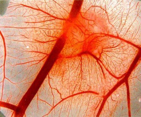 Некоторые лекарства приводят к ухудшению свертываемости крови и провоцируют кровотечения