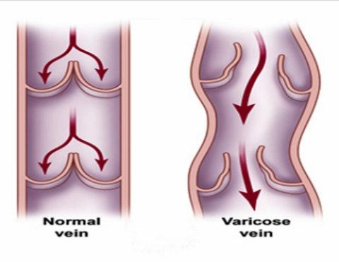 Нормальный сосуд и правильно работающие клапана (слева) и пораженная варикозом (справа).