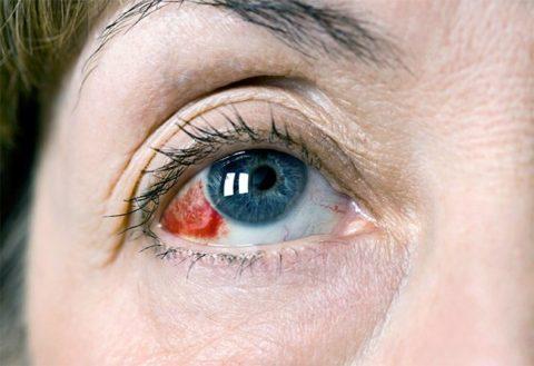 Объемное кровоизлияние