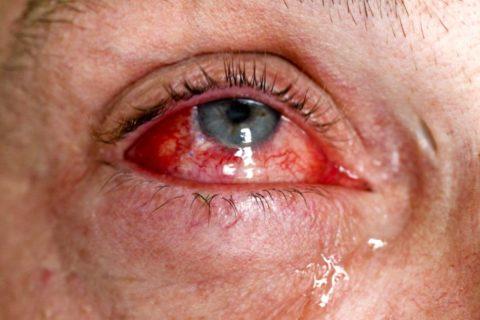 Обширные кровоизлияния