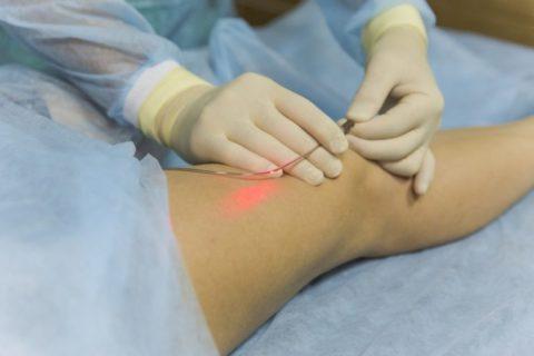Методика хирургического вмешательства