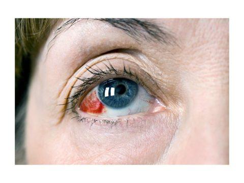 Красным глаз будет довольно продолжительное время