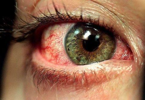 Покраснение глаз ухудшает самочувствие и внешний вид пациента