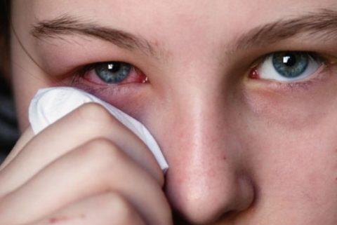 При аллергических реакция глаза красные и слезятся