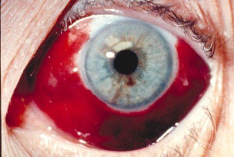 При сильных травмах глазное яблоко может выглядеть как сплошное красное пятно