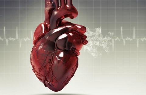Проблемы с сердцем – повод для решительных действий.