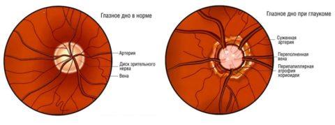 При патологии изменяется глазное дно