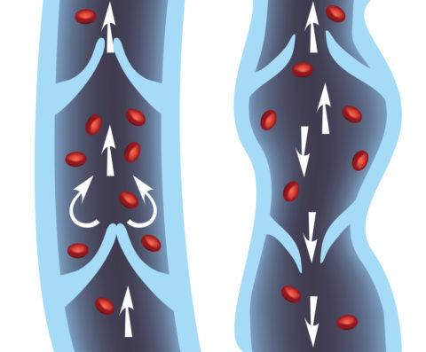 Схема нормальной вены (слева) и с патологией клапанов (справа)